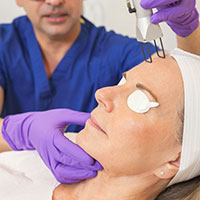 Laser Skin Resurfacing | Laser Tattoo Removal Beverly Hills CA | Encino CA | Torrance CA